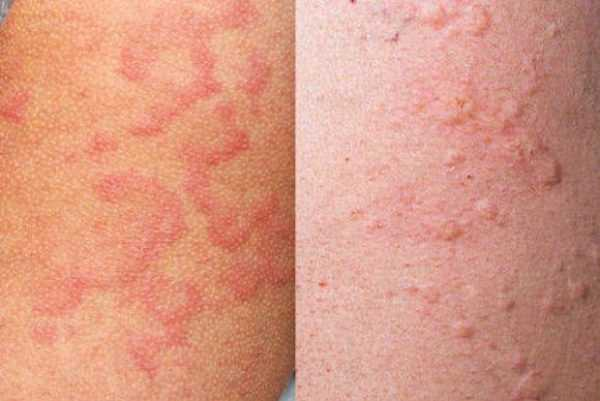 Аллергическая реакция, Побочные эффекты