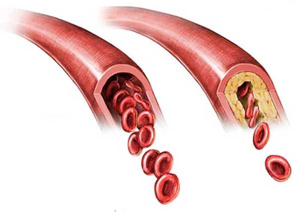 Потенциал Форте показан при атеросклерозе