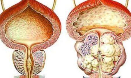 Как влияет на потенцию аденома простаты