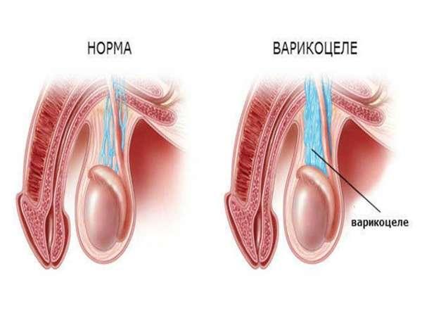Варикоцеле или расширение вен семенного канатика