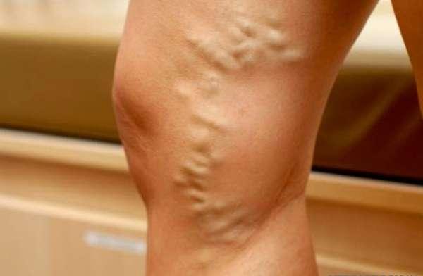 Варикозная болезнь нижних конечностей: как влияет на потенцию